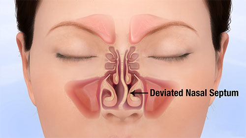 deviated-septum-illustration